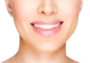 Simple Smile tandblekning