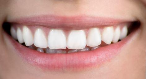 Vita tänder efter tandblekning.
