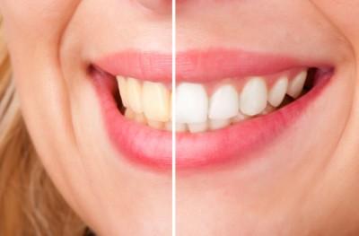 hur ofta kan man bleka tänderna