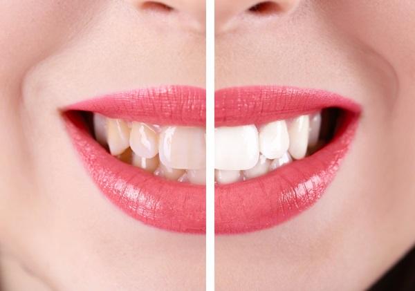 Före och efter bilder från tandblekning hemma.